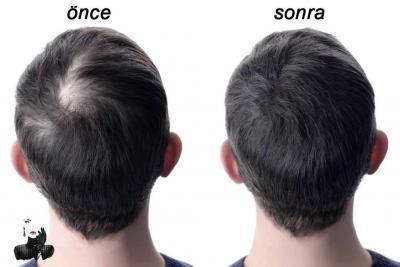 Saç Simülasyonu | Yasemin Miras